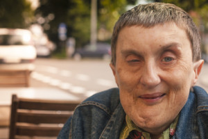 close-up of disabled man sitting outdoors smiling